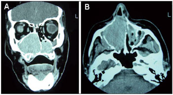 Extramedullary nasal plasmacytoma: Literature review and a