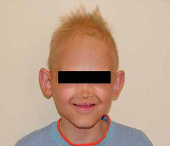 Atrophic Rhinitis: A Case Report Related to Ectodermal Dysplasia